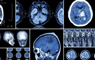 strokes and Brain Injury